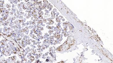 Onderzoekers in Groningen beschrijven immuun cel subsets in de placenta